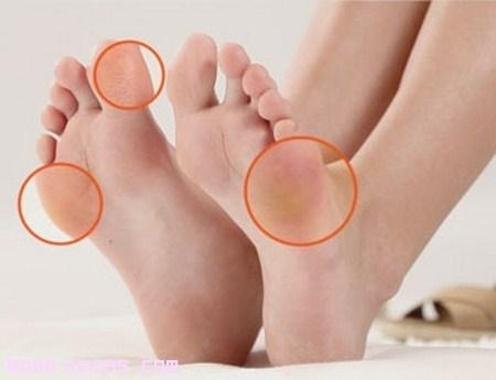 Eliminar las durezas de los pies