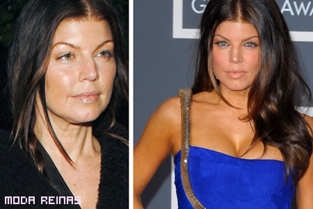 fergie-despues-del-botox