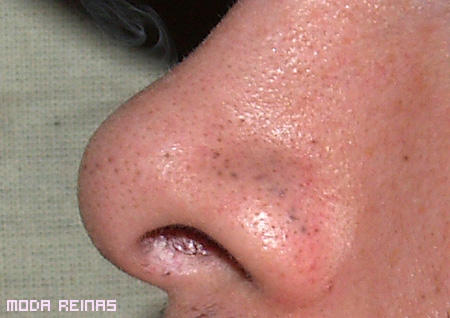 La mesoterapia al acné de la persona las revocaciones